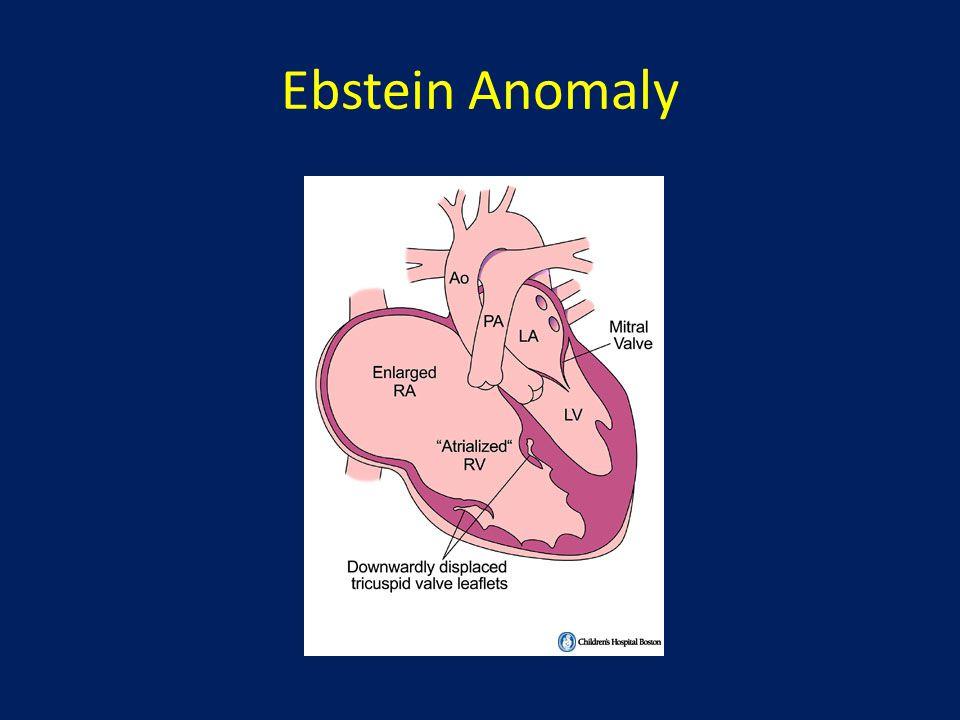 Ebstein Anomaly