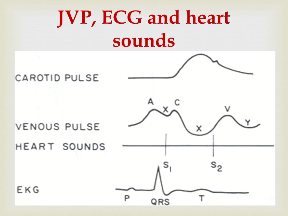 JVP, ECG and heart sounds