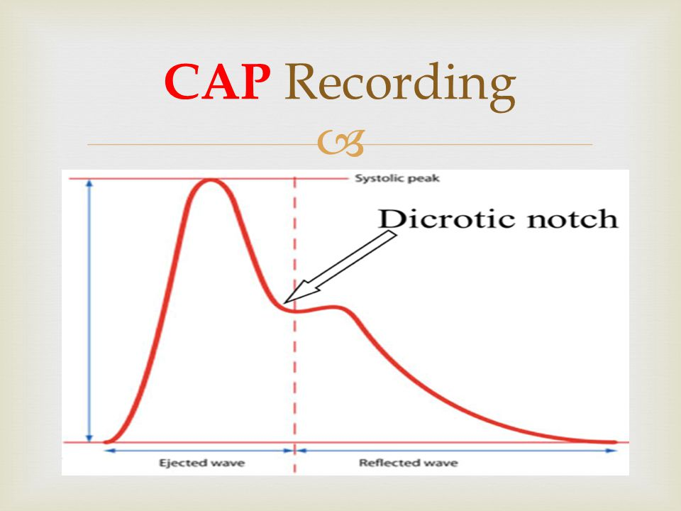 CAP Recording