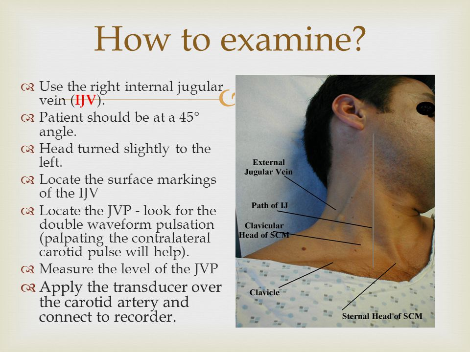 How to examine Use the right internal jugular vein (IJV). Patient should be at a 45° angle. Head turned slightly to the left.