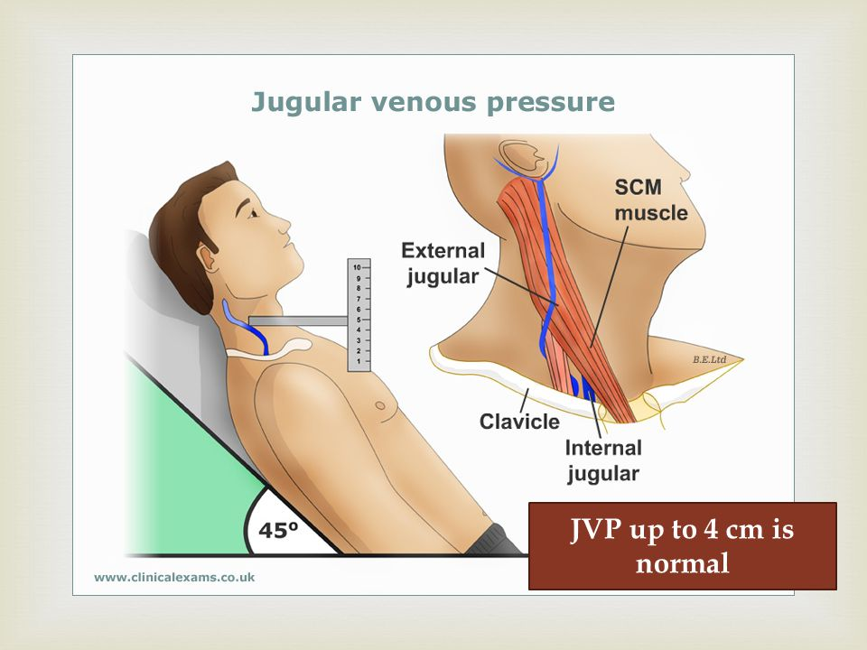 JVP up to 4 cm is normal