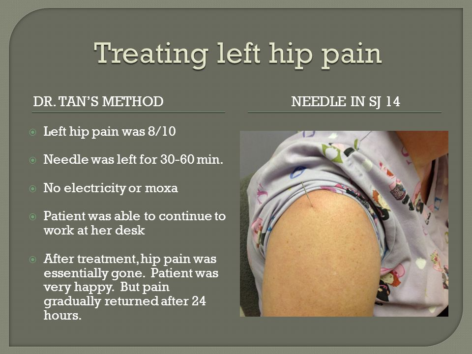 Treating left hip pain Dr. Tan's method Needle in SJ 14