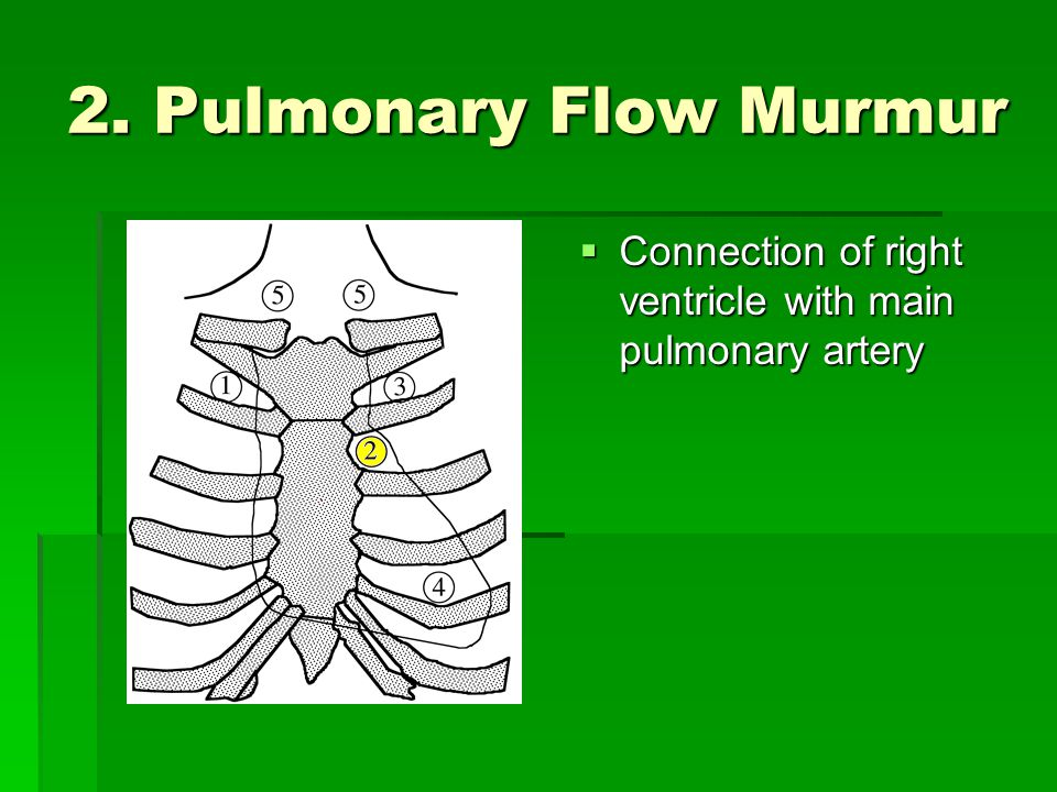 2. Pulmonary Flow Murmur Connection of right ventricle with main pulmonary artery