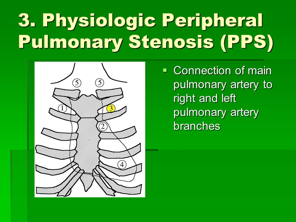 3. Physiologic Peripheral Pulmonary Stenosis (PPS)