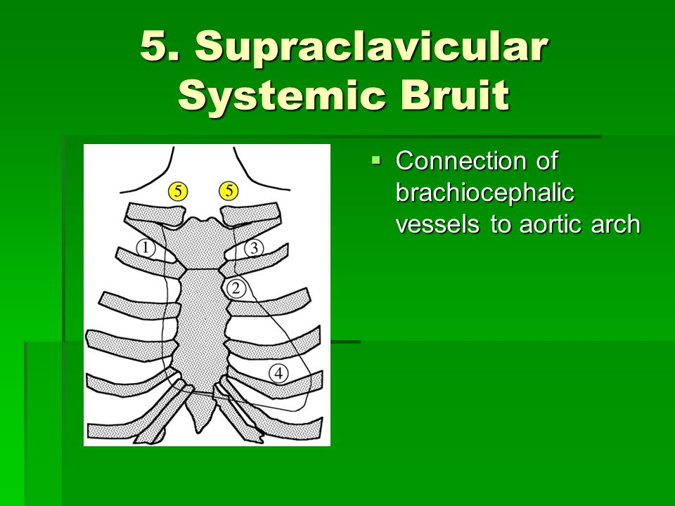 5. Supraclavicular Systemic Bruit