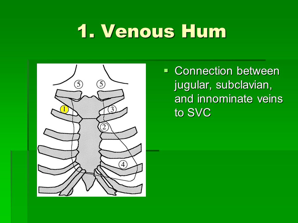 1. Venous Hum Connection between jugular, subclavian, and innominate veins to SVC