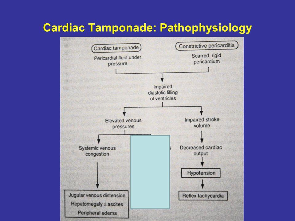 Cardiac Tamponade: Pathophysiology