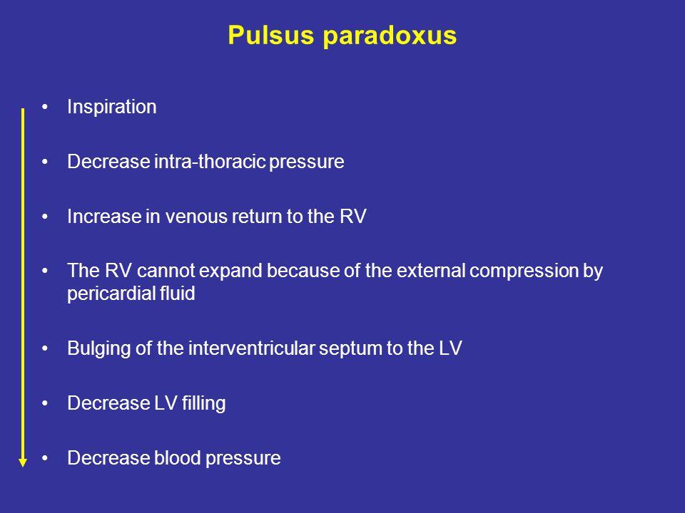 Pulsus paradoxus Inspiration Decrease intra-thoracic pressure