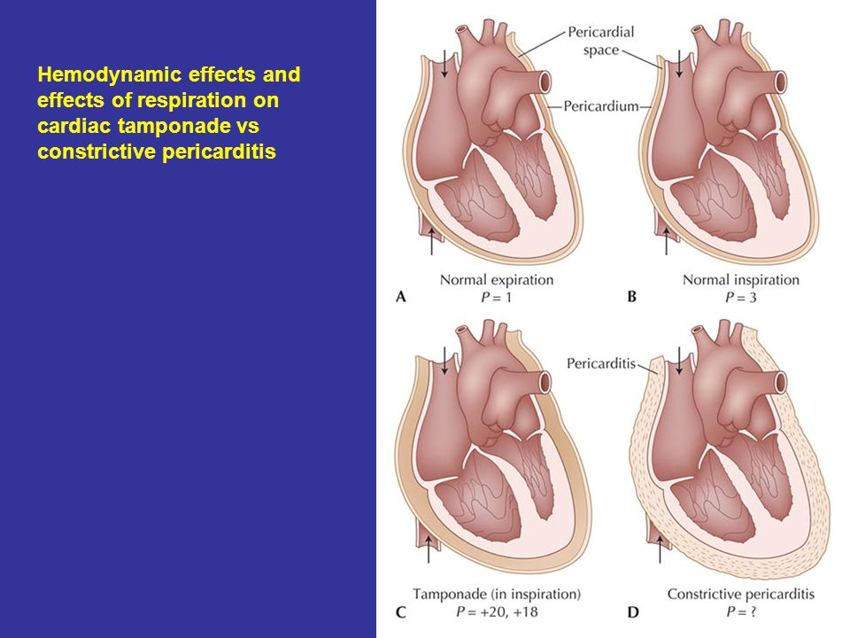 Hemodynamic effects and effects of respiration on cardiac tamponade vs constrictive pericarditis