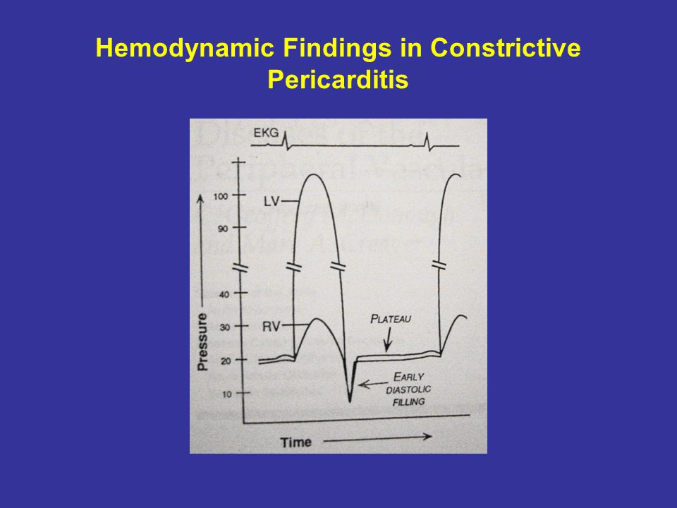 Hemodynamic Findings in Constrictive Pericarditis