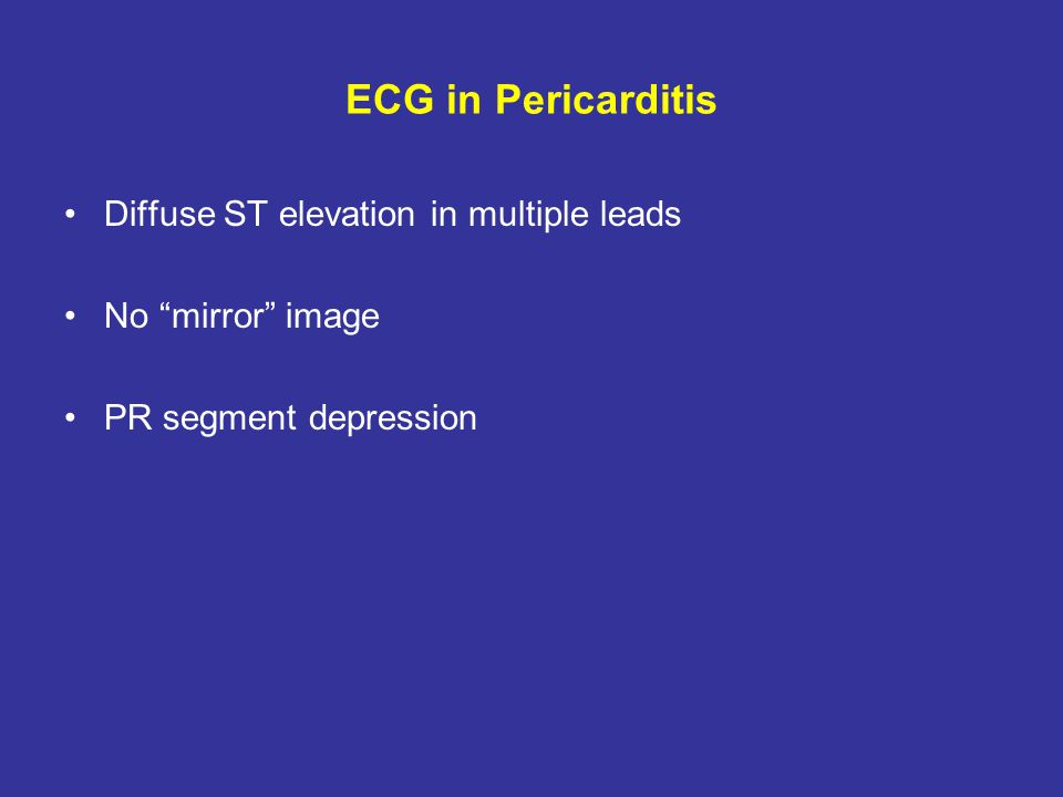 ECG in Pericarditis Diffuse ST elevation in multiple leads