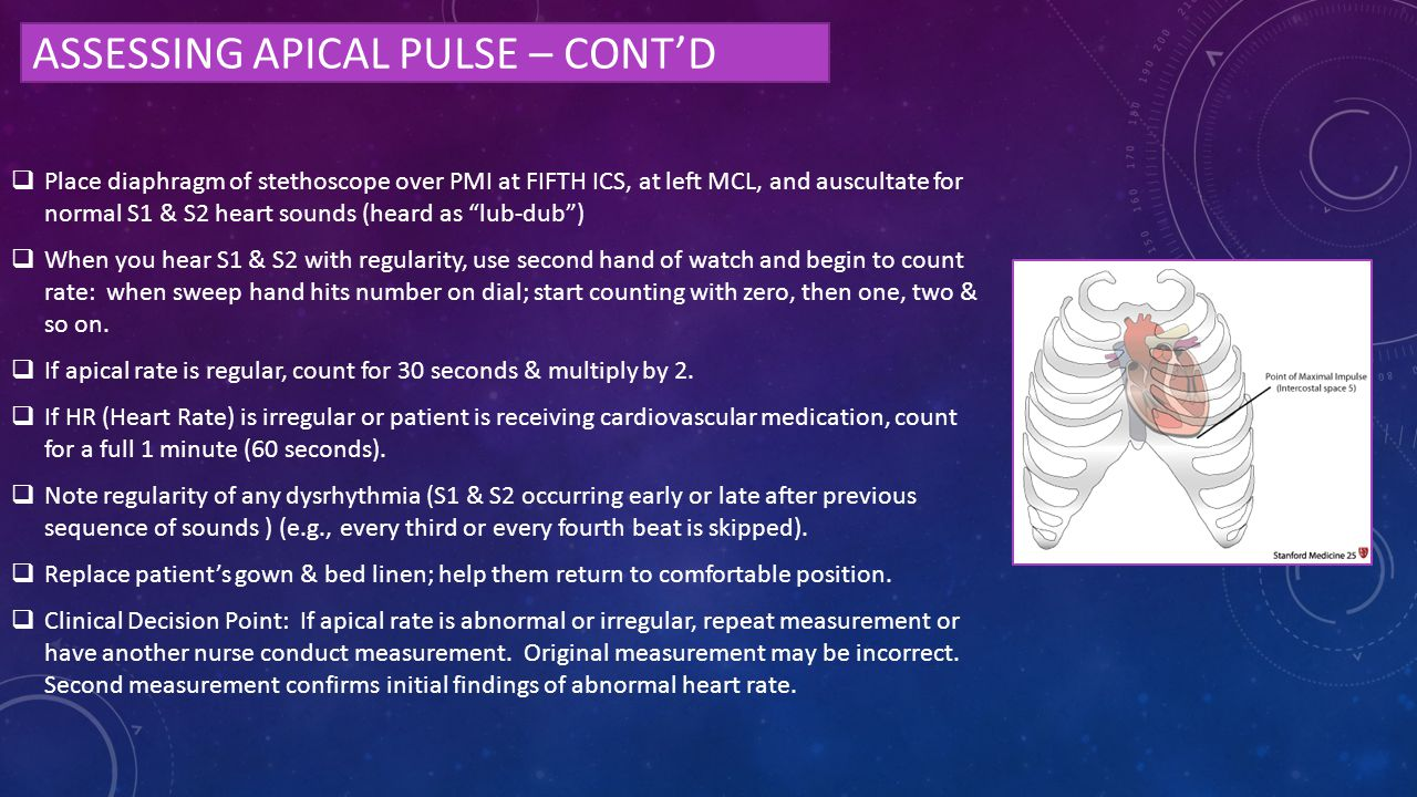 Assessing apical pulse – cont'd