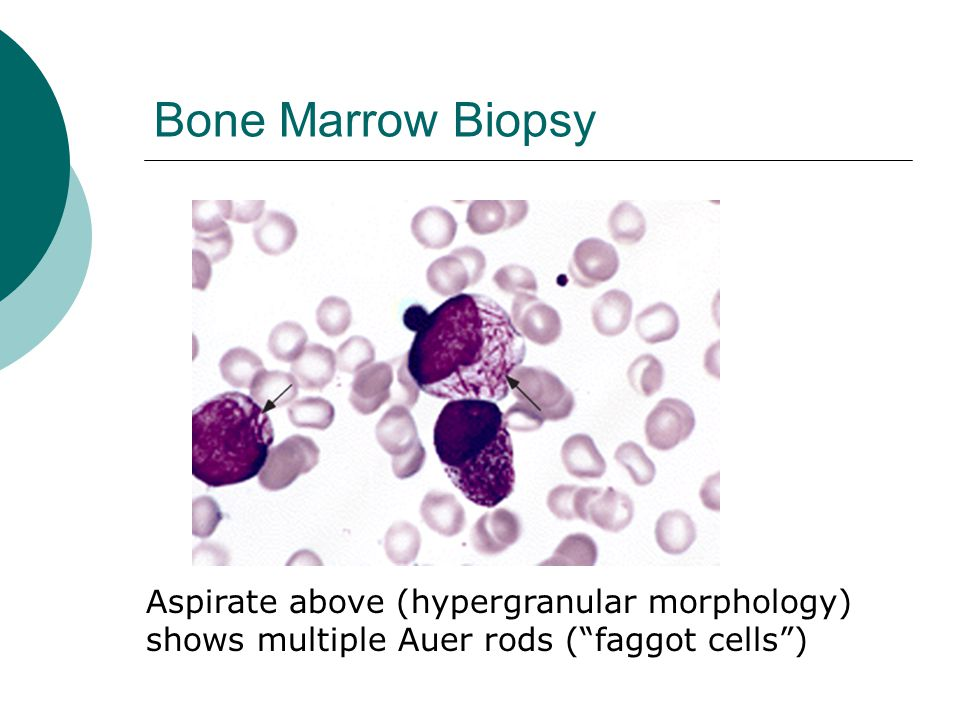 Bone Marrow Biopsy Aspirate above (hypergranular morphology)