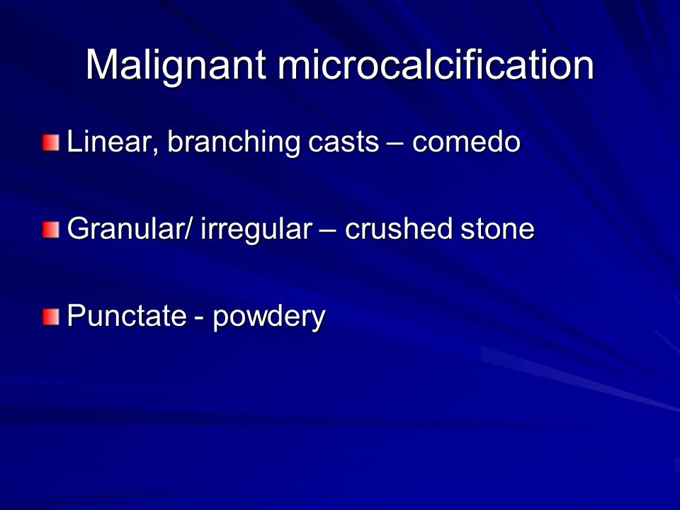 Malignant microcalcification