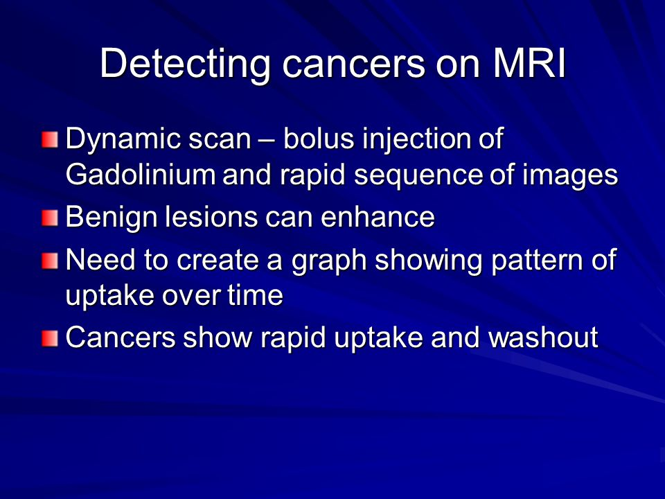 Detecting cancers on MRI