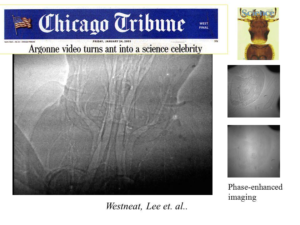 Ants Pant! Phase-enhanced imaging Westneat, Lee et. al..