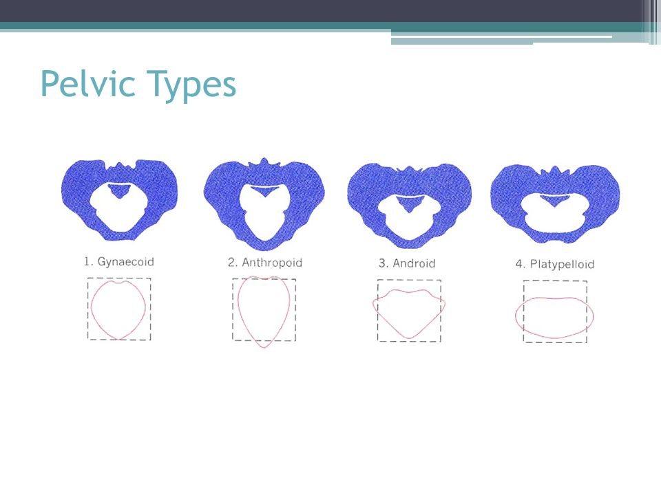 Pelvic Types From your clinical pelvimetry, you can categorize the pelvis into one of four types.