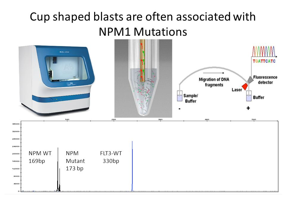 Cup shaped blasts are often associated with NPM1 Mutations
