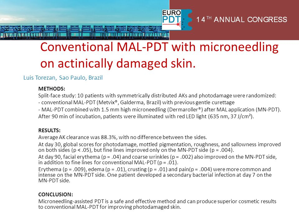 Conventional MAL-PDT with microneedling on actinically damaged skin.