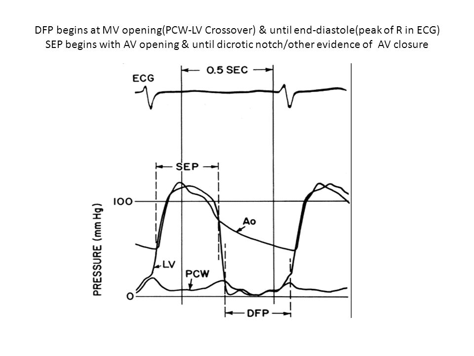 DFP begins at MV opening(PCW-LV Crossover) & until end-diastole(peak of R in ECG) SEP begins with AV opening & until dicrotic notch/other evidence of AV closure