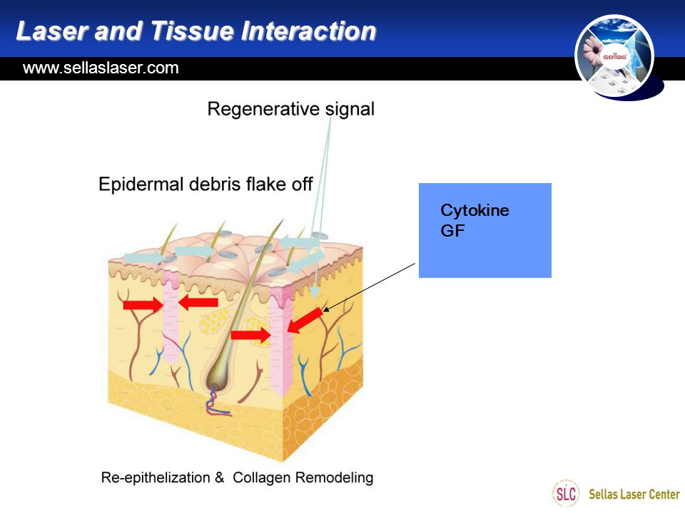 Laser and Tissue Interaction