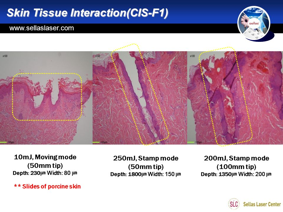 Skin Tissue Interaction(CIS-F1)
