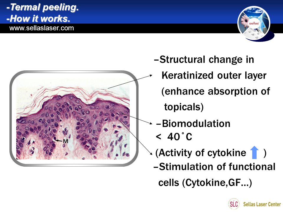 Keratinized outer layer (enhance absorption of topicals)