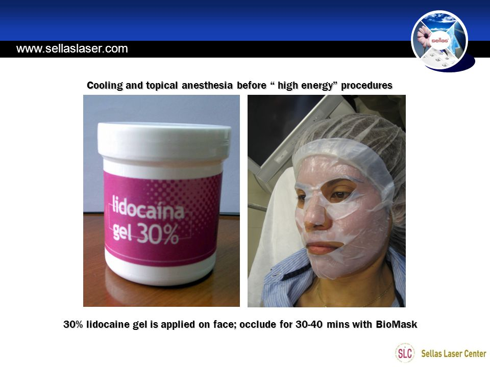 www.sellaslaser.com Cooling and topical anesthesia before high energy procedures.
