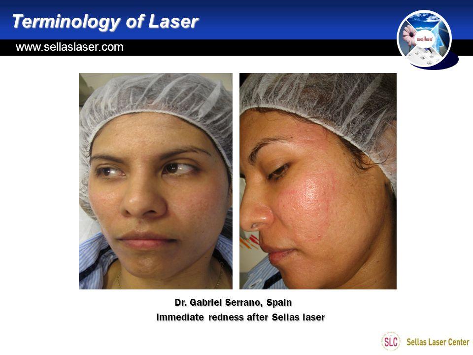 Terminology of Laser www.sellaslaser.com Dr. Gabriel Serrano, Spain