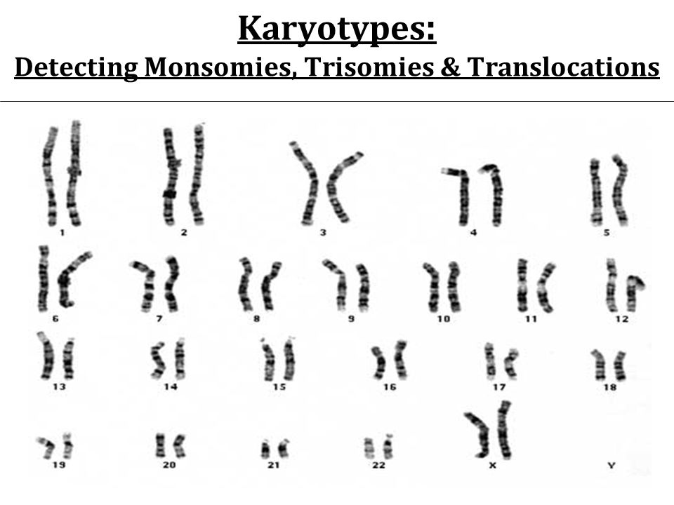 Karyotypes: Detecting Monsomies, Trisomies & Translocations