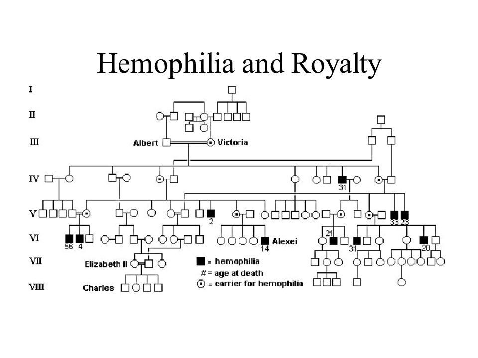 Hemophilia and Royalty