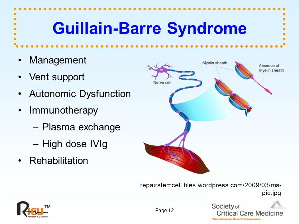 GBS – Guillain Barre Syndrome – complications, management
