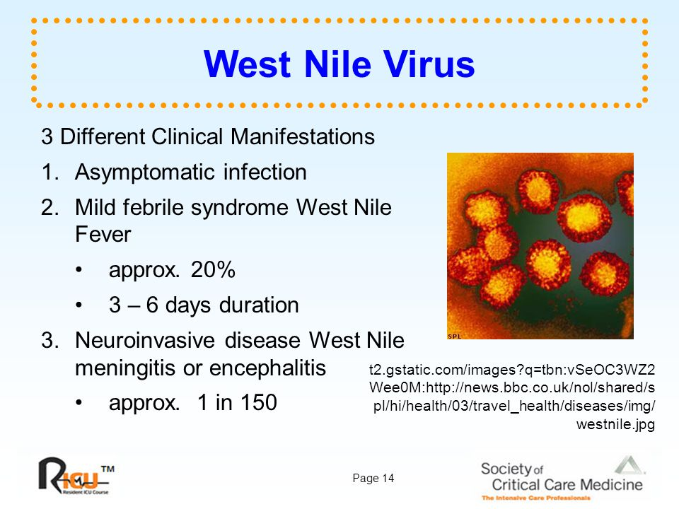 West Nile Virus 3 Different Clinical Manifestations