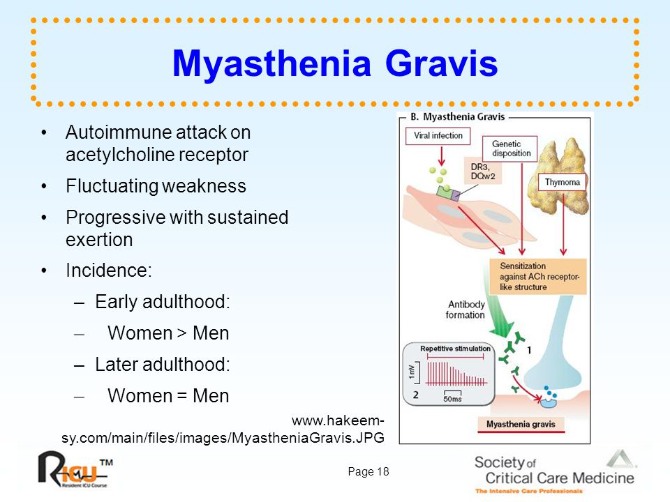 Myasthenia Gravis Autoimmune attack on acetylcholine receptor