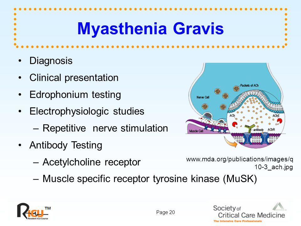 Myasthenia Gravis Diagnosis Clinical presentation Edrophonium testing