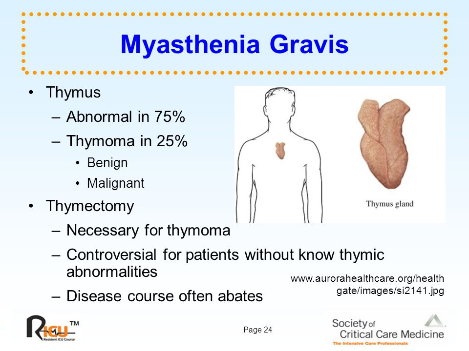 Myasthenia Gravis Thymus Abnormal in 75% Thymoma in 25% Thymectomy
