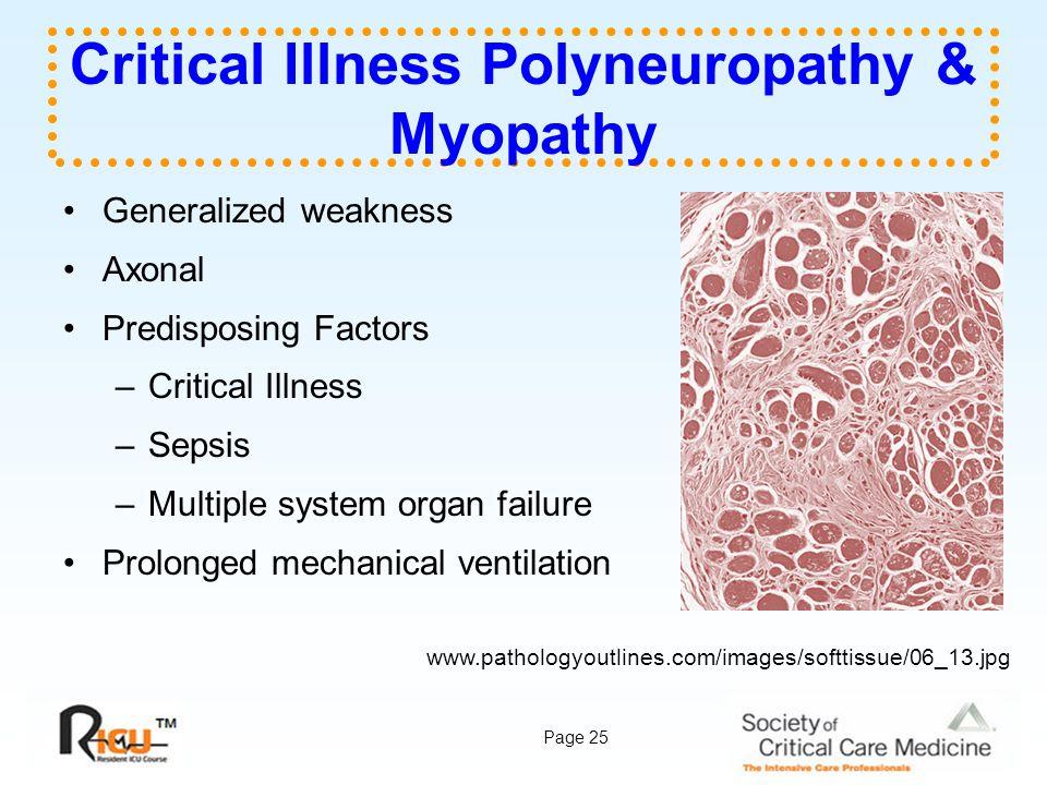 Critical Illness Polyneuropathy & Myopathy