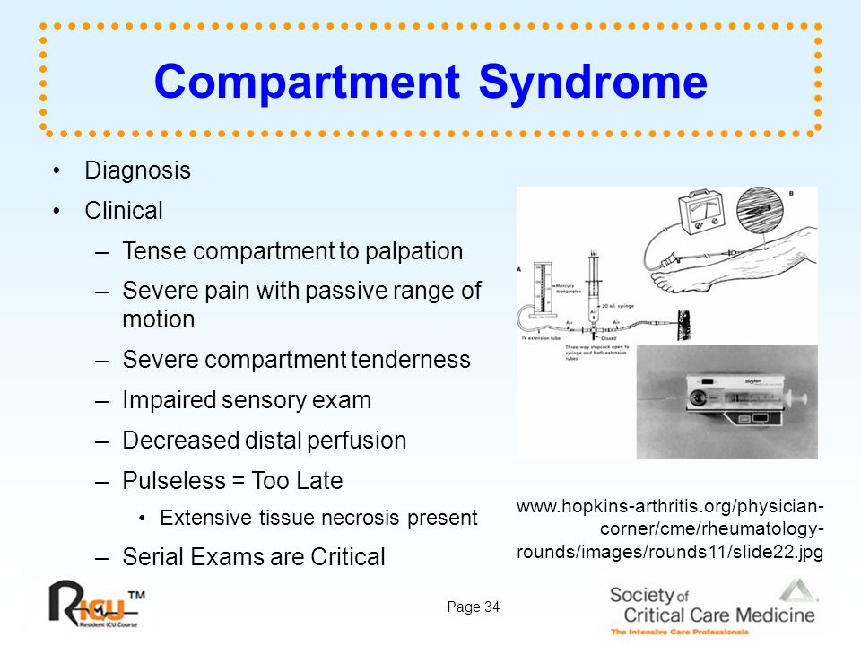 Compartment Syndrome Diagnosis Clinical Tense compartment to palpation