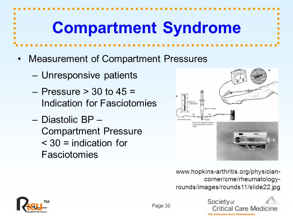 Compartment Syndrome Measurement of Compartment Pressures