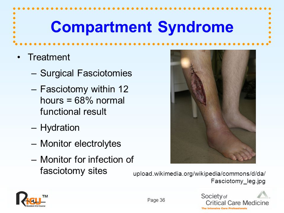 Compartment Syndrome Treatment Surgical Fasciotomies