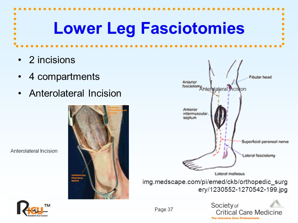 Lower Leg Fasciotomies