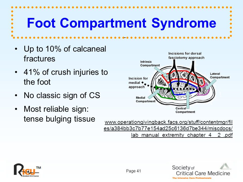 Foot Compartment Syndrome