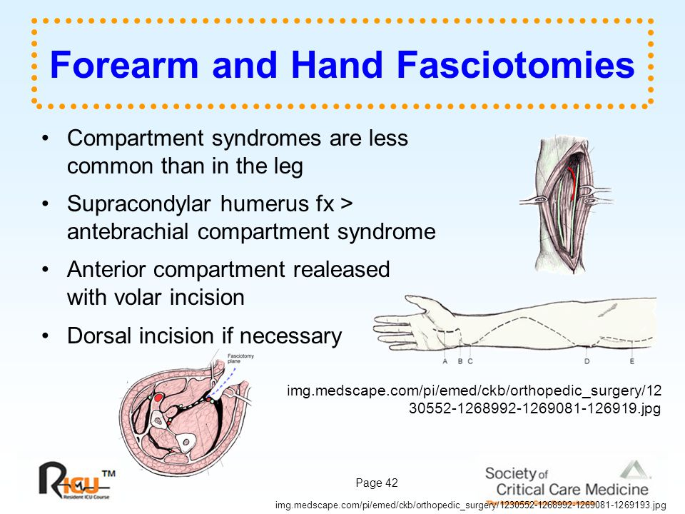 Forearm and Hand Fasciotomies