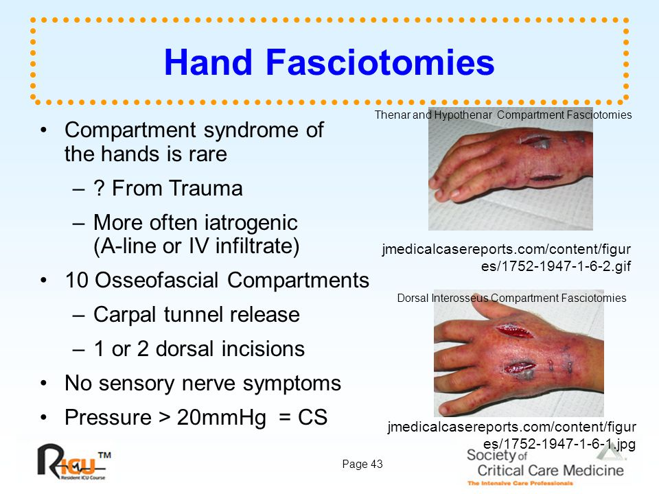 Hand Fasciotomies Compartment syndrome of the hands is rare