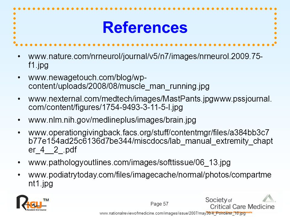 References www.nature.com/nrneurol/journal/v5/n7/images/nrneurol.2009.75-f1.jpg.