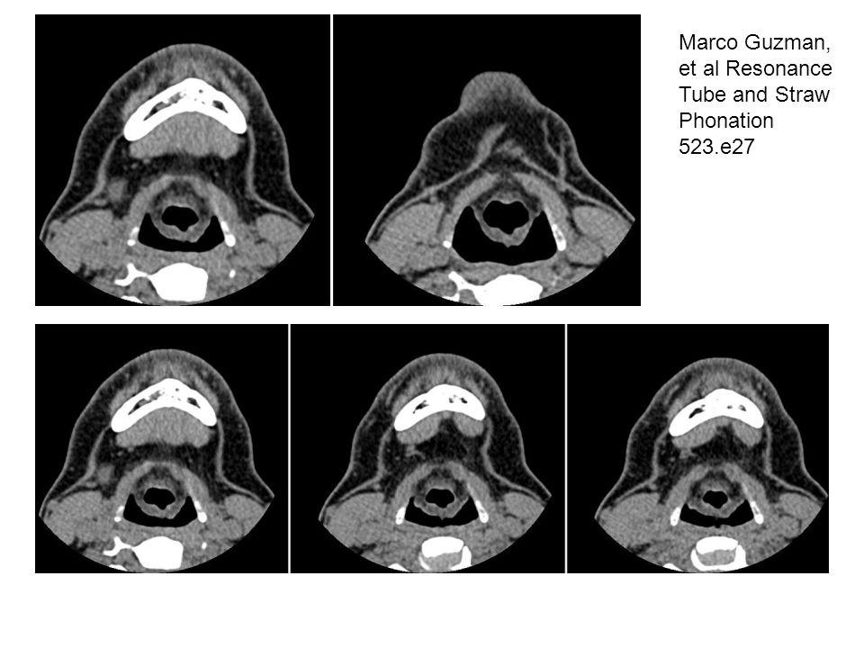 Marco Guzman, et al Resonance Tube and Straw Phonation 523.e27