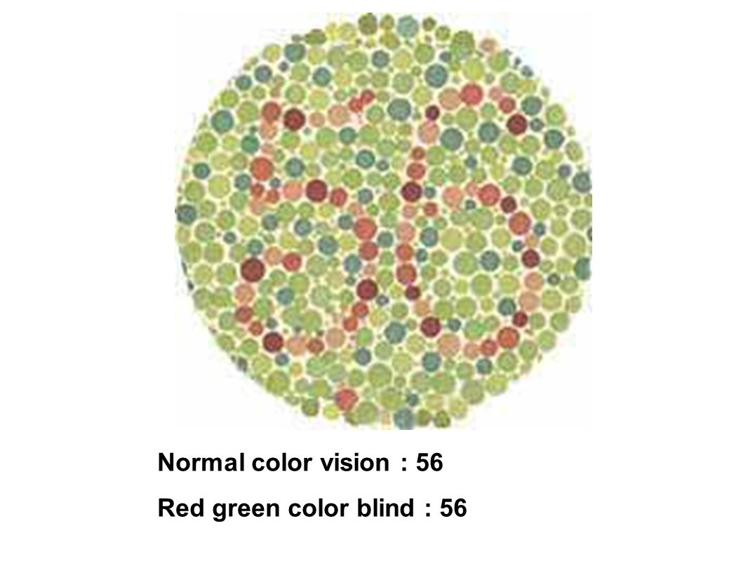 Normal color vision : 56 Red green color blind : 56