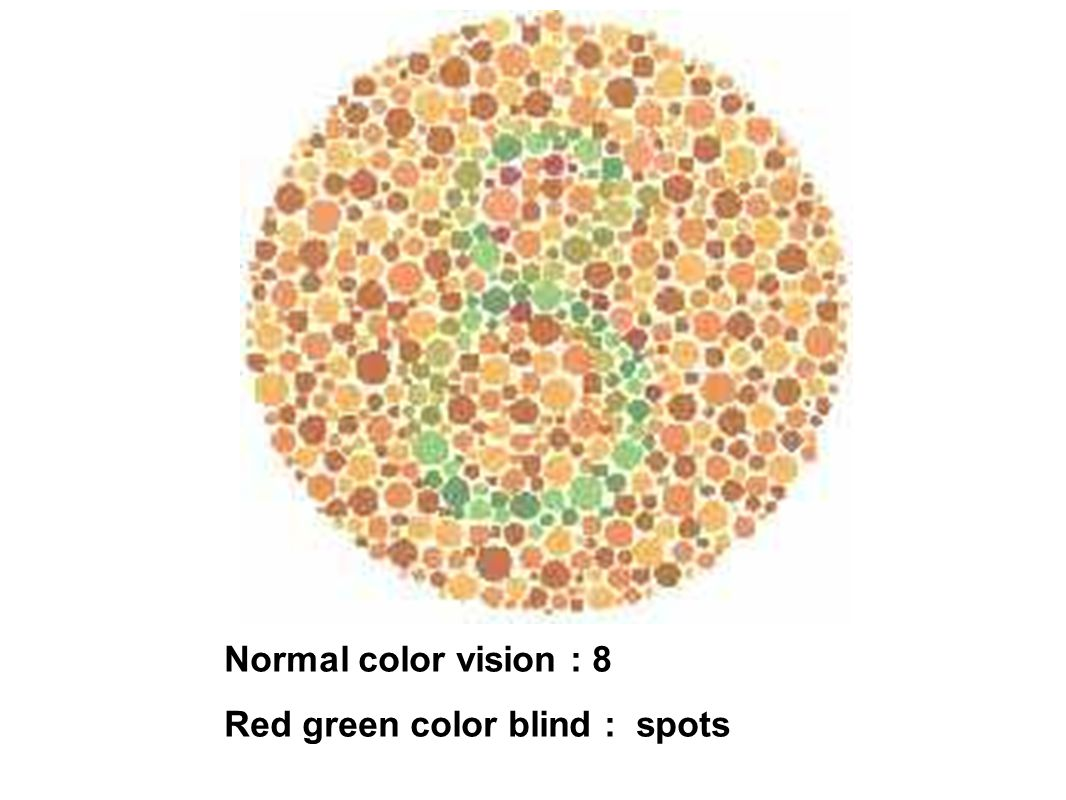 Normal color vision : 8 Red green color blind : spots