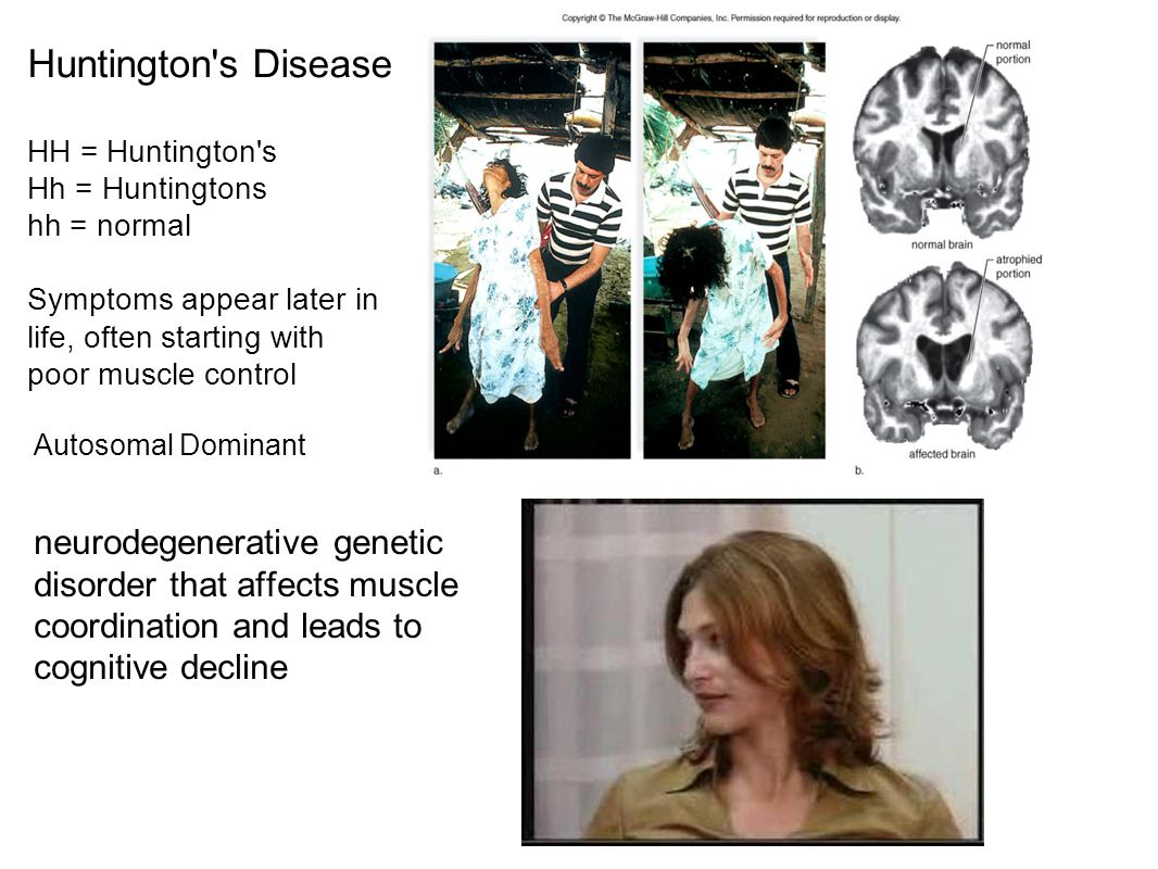 Huntington s Disease HH = Huntington s. Hh = Huntingtons. hh = normal. Symptoms appear later in life, often starting with poor muscle control.