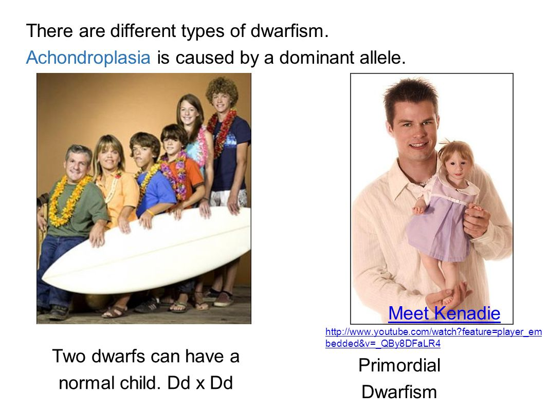 Two dwarfs can have a normal child. Dd x Dd
